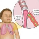 Cách chữa bệnh cho trẻ không dùng kháng sinh (Phần 4-chữa viêm phế quản)